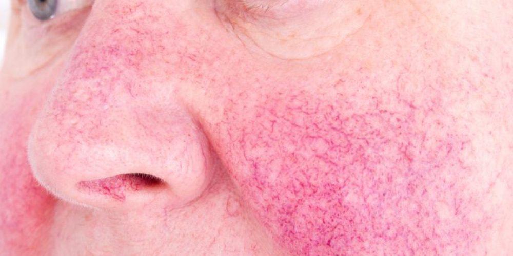 Dermatologists Cut Back on Antibiotics But Still Prescribe the Most