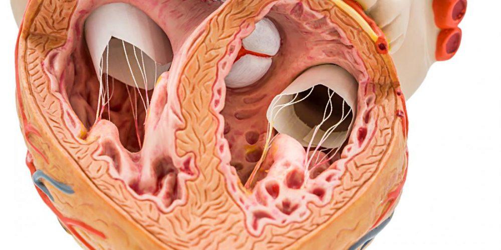 How calcium in coronary arteries can predict future heart health