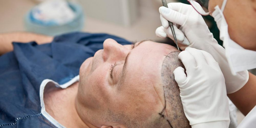 How effective are different hair transplant methods?