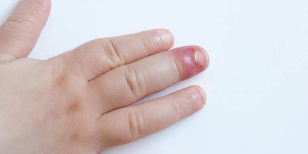 How to treat paronychia (an infected nail)