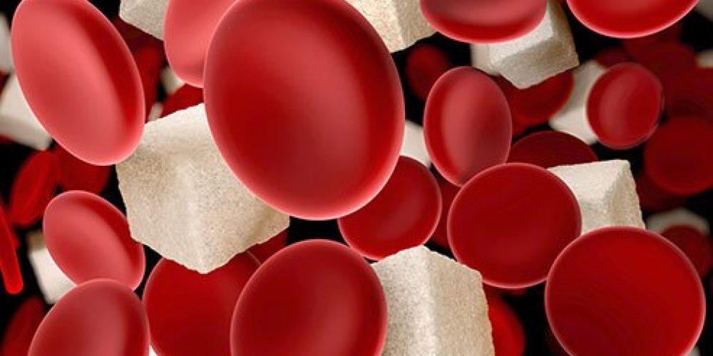 Low Blood Sugar (Hypoglycemia)