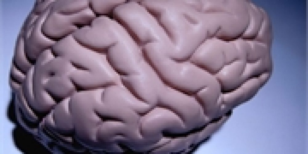More Doubt That Plaques in the Brain Cause Alzheimer's
