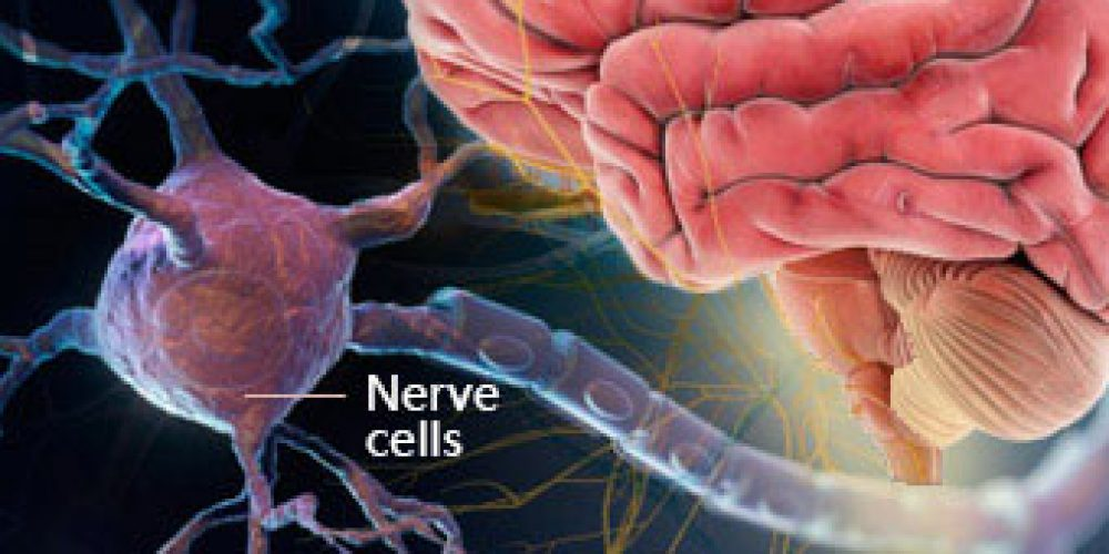 Multiple Sclerosis (MS) Symptoms, Causes, Treatment, Life Expectancy