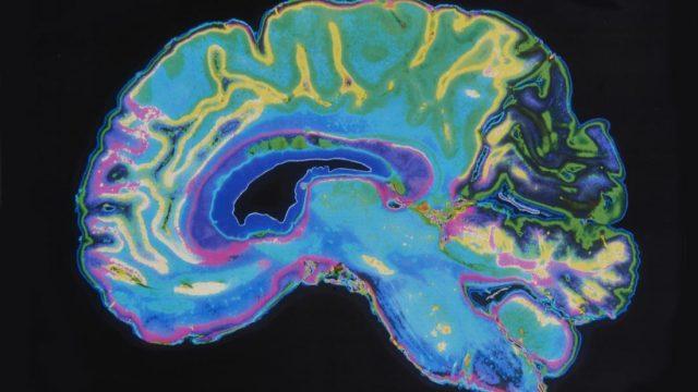 Scientists draw closer to a dementia vaccine
