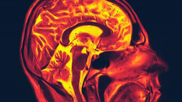 'Spontaneous chemistry' may drive Alzheimer's