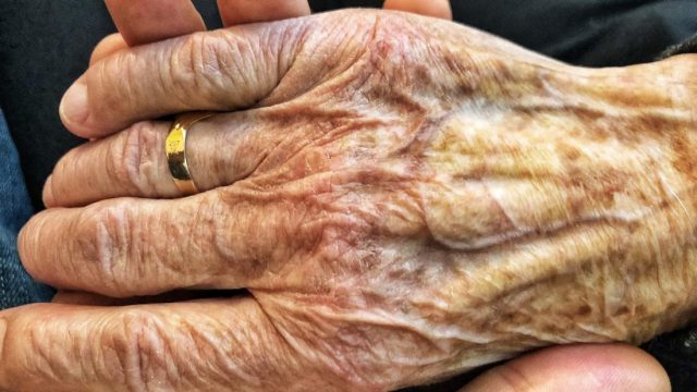 The signs and symptoms of Parkinson's disease