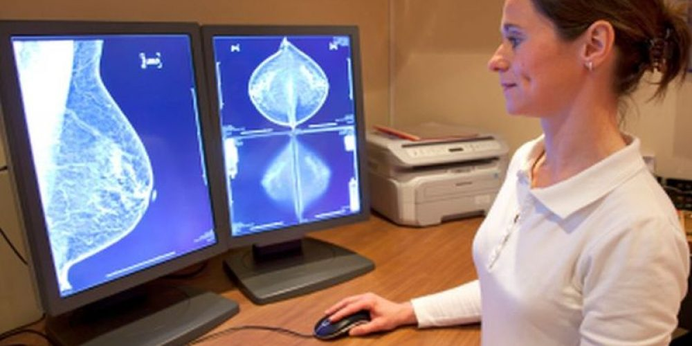 Experimental Drug Helps Women With Deadly Type of Breast Cancer