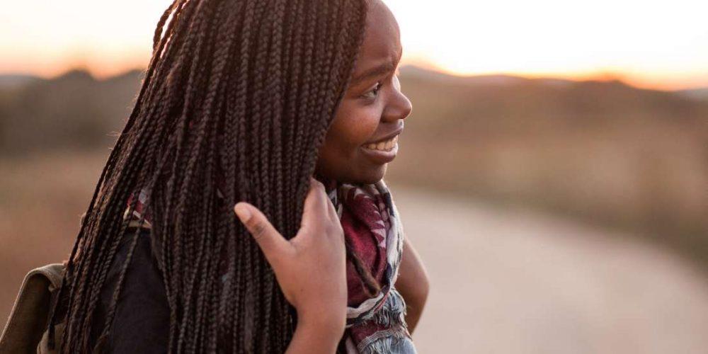 How does sunburn affect dark skin?
