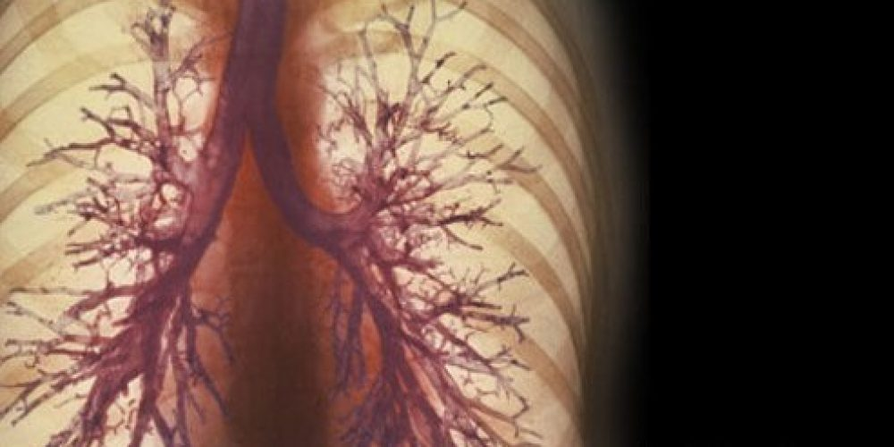 ipratropium bromide inhaler (Atrovent)