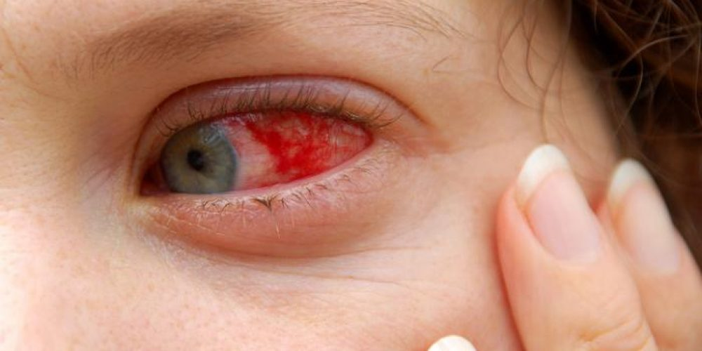 Red eyes: List of common causes