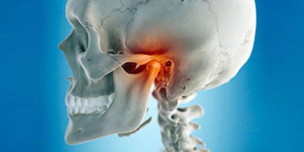 Temporomandibular Joint Syndrome (TMJ)