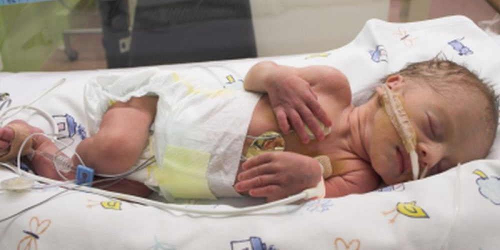 Treatment for Very-Preterm Infants May Lead to Antibiotic Resistance