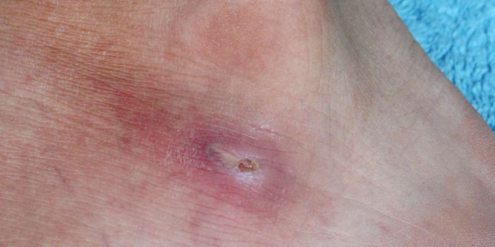 What can cause red spots on the feet?