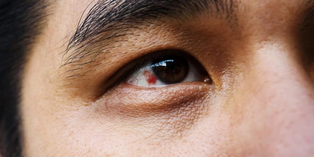 What causes a red spot on the eye?