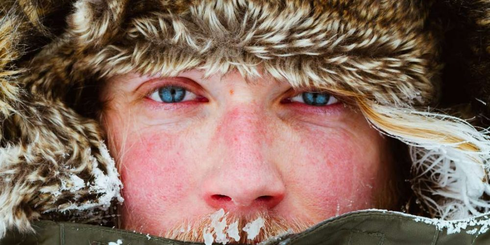 What to know about windburn