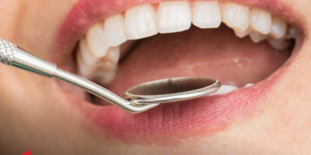 AHA News: Mouth Bacteria Found in Stroke Patients' Brains