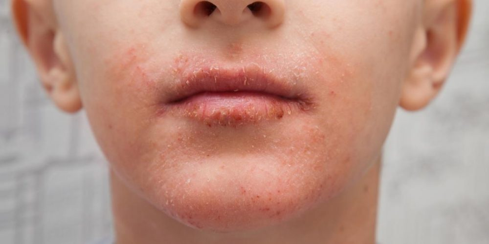 Dry skin around the mouth: Causes and remedies