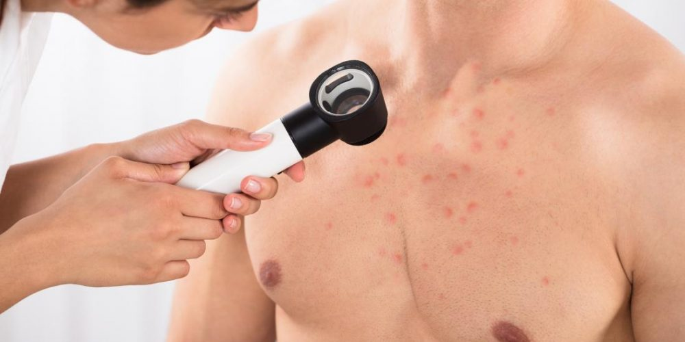 How do you get rid of chest acne?