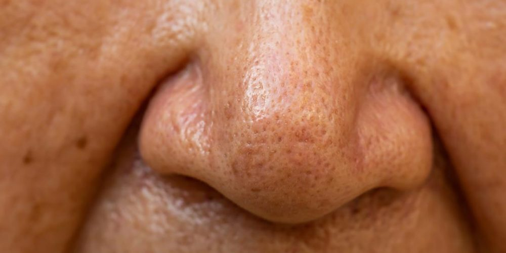 Poor sense of smell linked to increased mortality risk