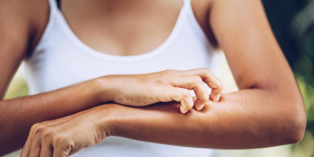Some keto diets may exacerbate skin inflammation