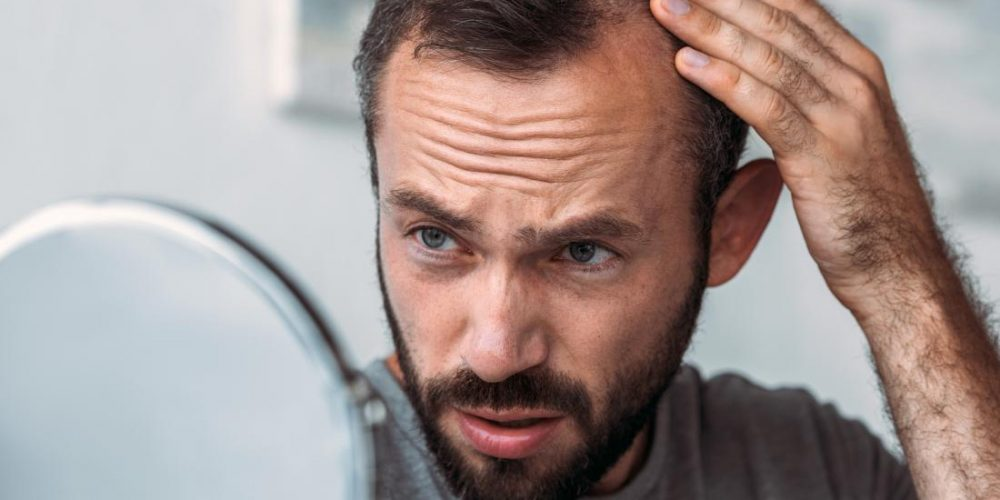 What to know about thyroid function and hair loss