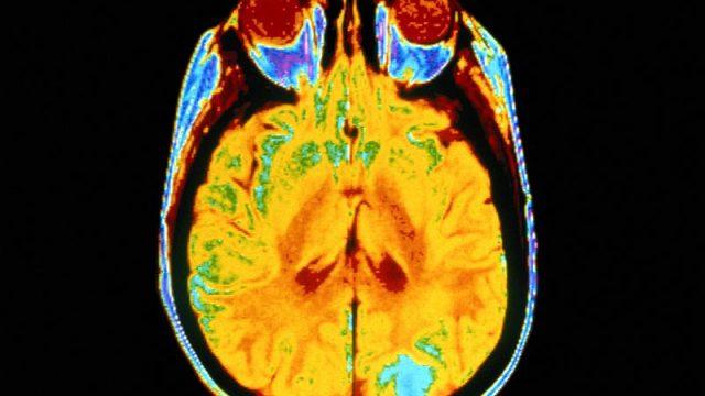 Brain Scans Spot, Track Alzheimer's