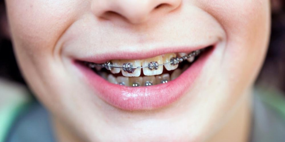 Do braces hurt? What to expect
