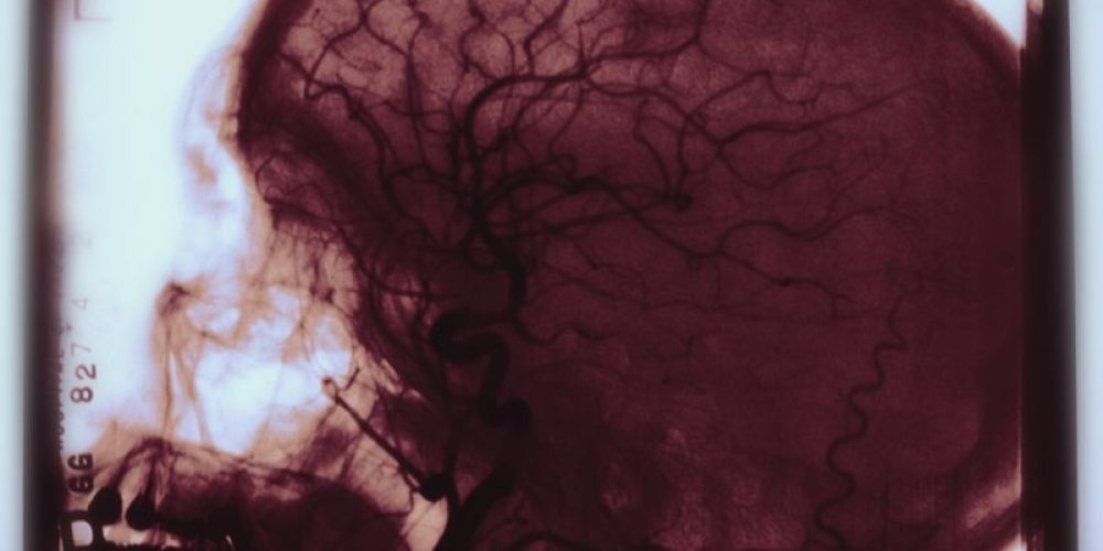 Another Opioid Scourge: Infection-Related Strokes