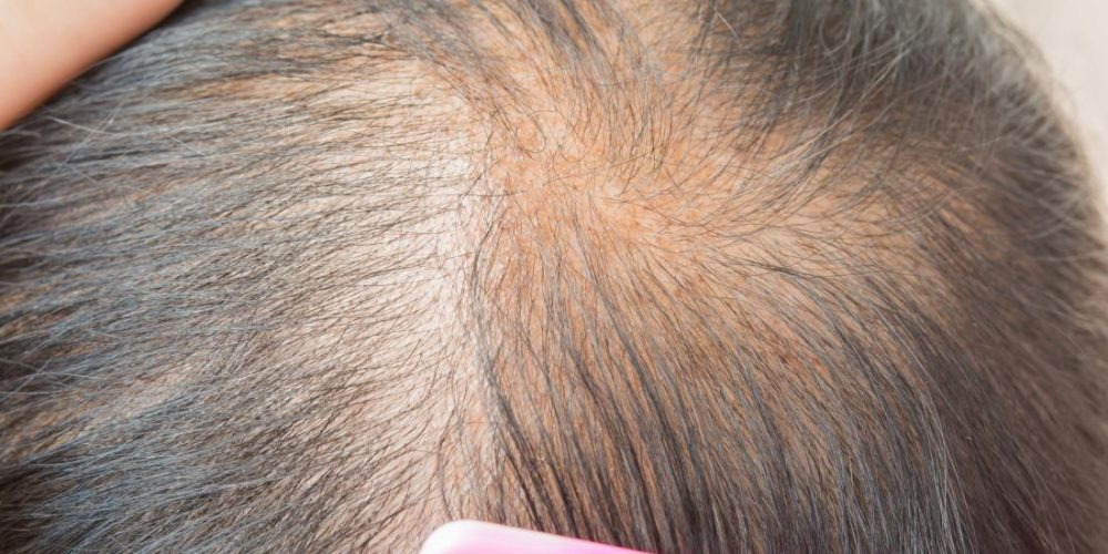Causes and treatments for thinning hair