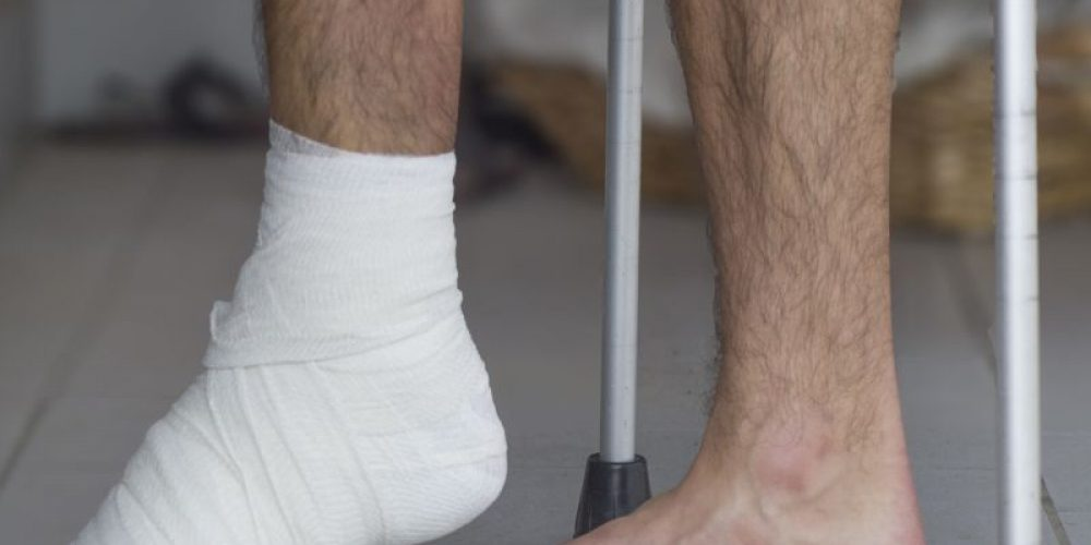 Ditch the Cast: Some Broken Ankles May Heal in Half the Time