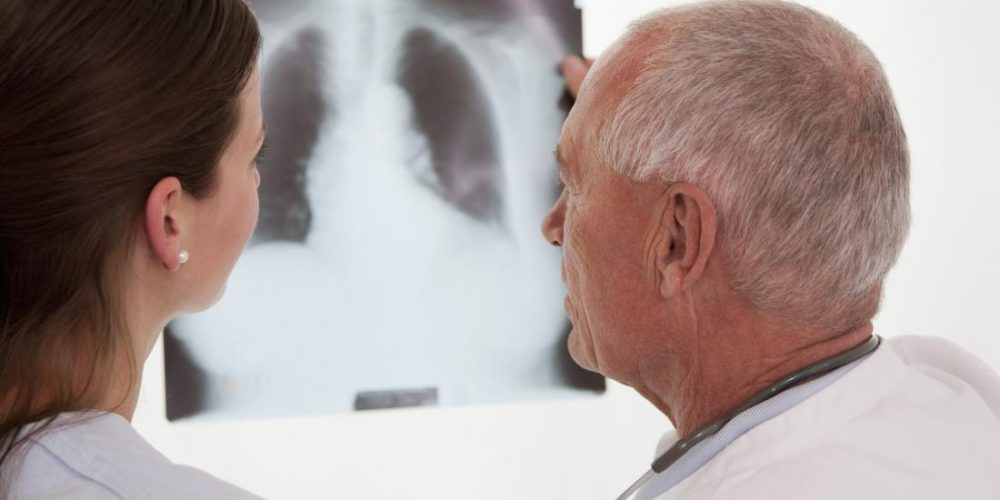 Does COPD show up on an X-ray?