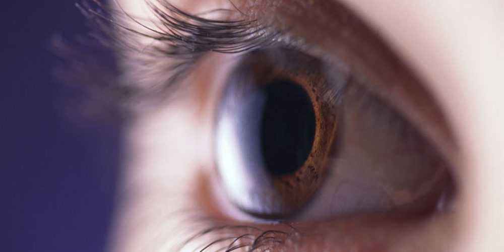 Dry Eye and Migraines Might Be Linked: Study