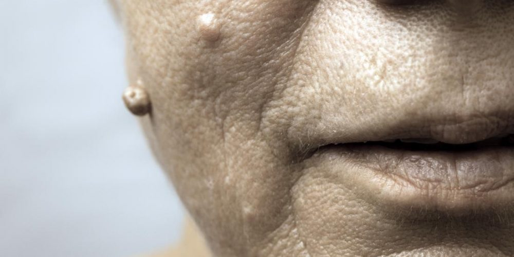 Facial warts and how to remove them