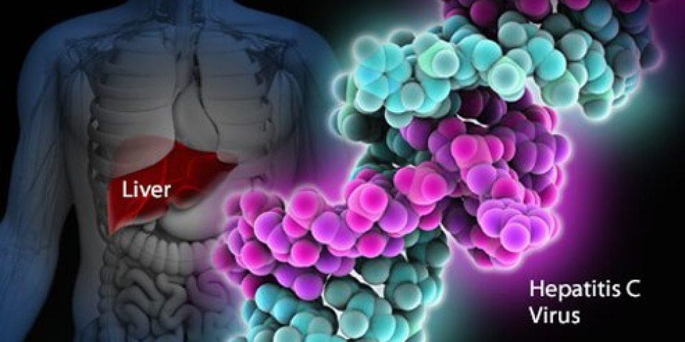 Hepatitis C (HCV, Hep C)