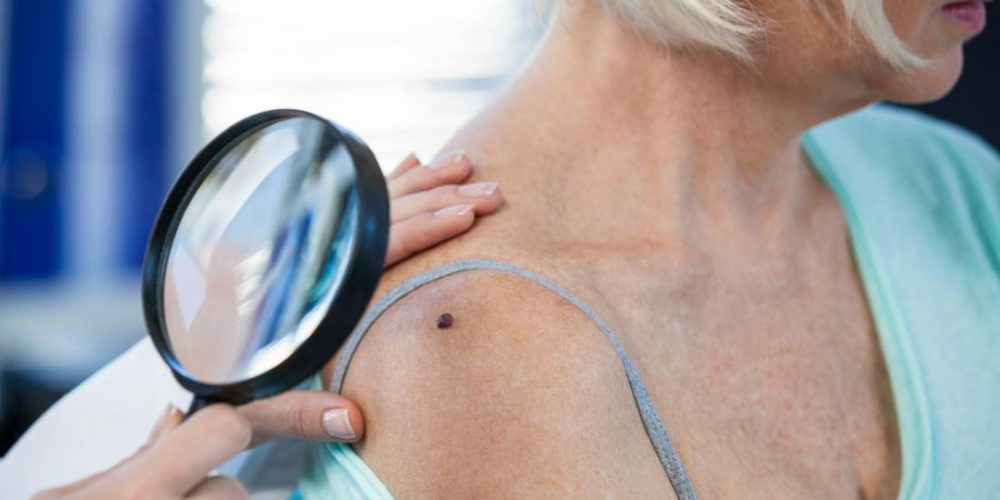 New compound could fight off aggressive melanoma