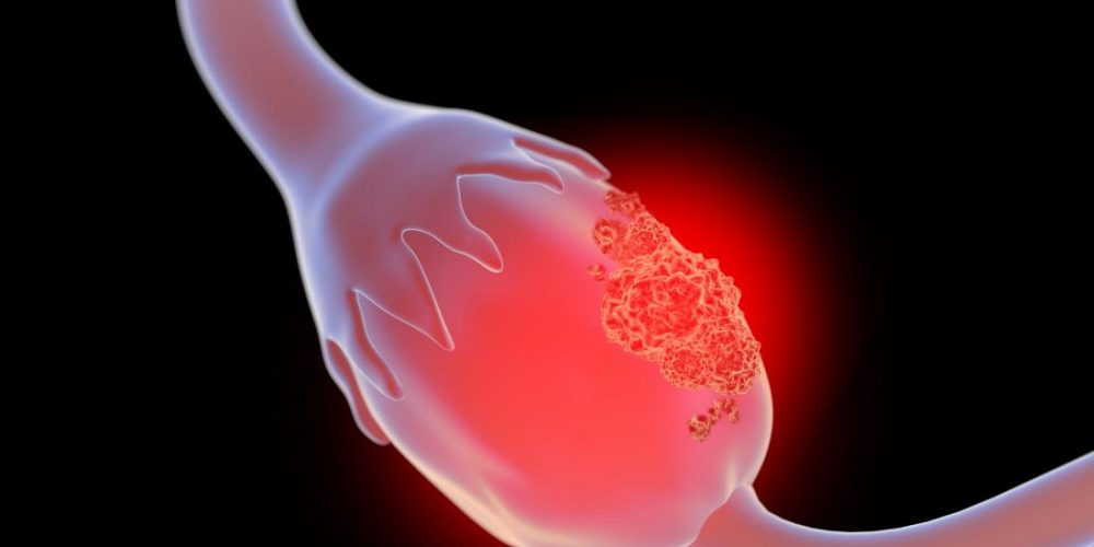 Ovarian cancer: Scientists find a way to launch dual attack
