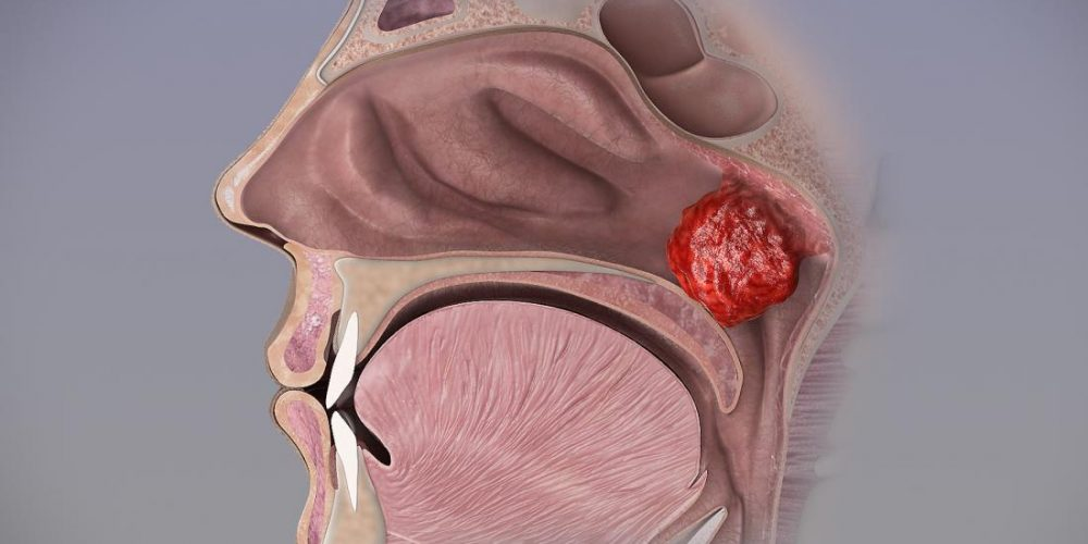 Risks and effects of adenoid removal