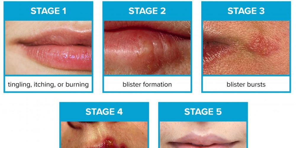 Stages of cold sore development: What to know