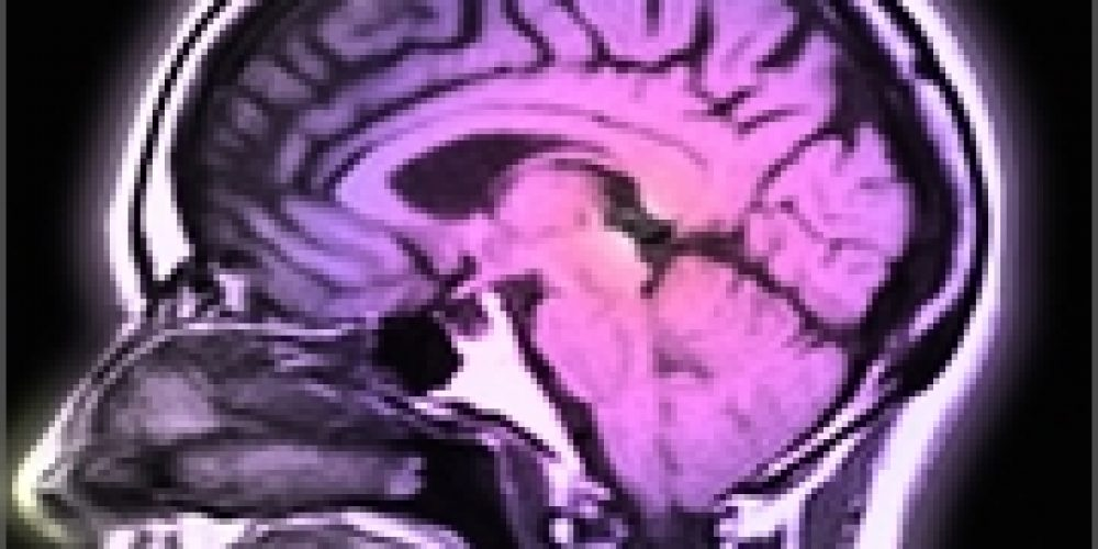 Study Might Point Alzheimer's Research in Whole New Direction