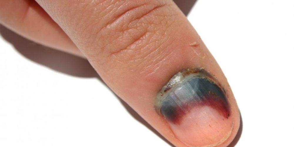 Subungual hematoma: Images, treatment, and link to melanoma
