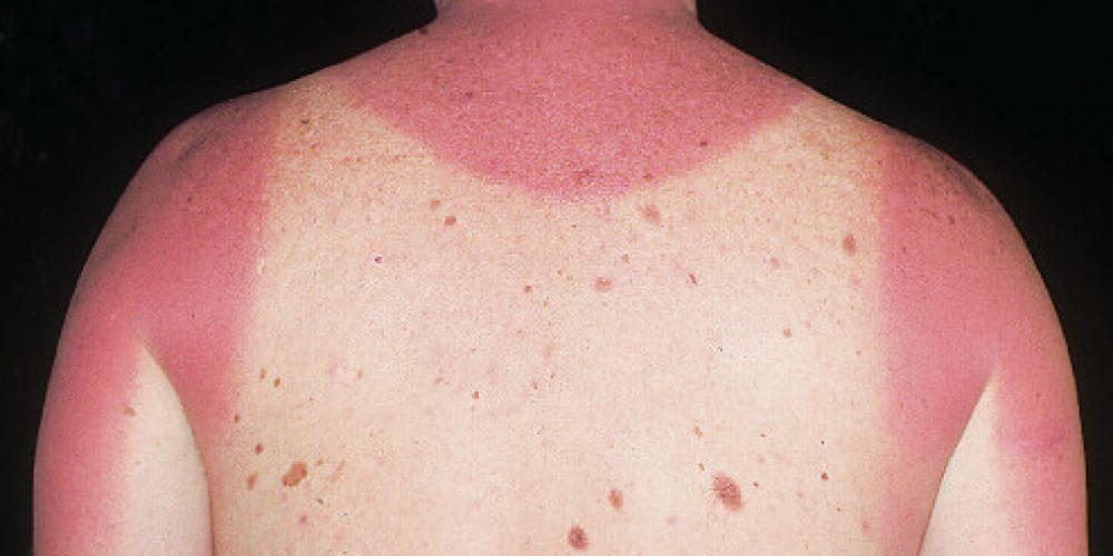 Sunburn (Sun Poisoning)