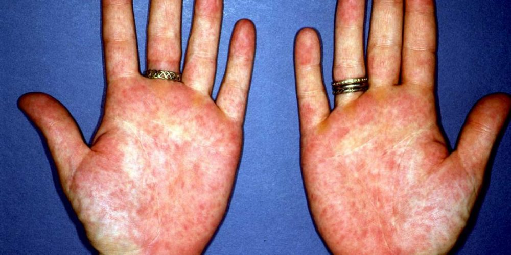 What is palmar erythema?