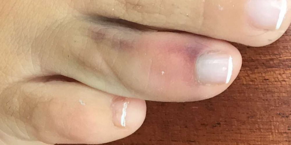 What to know about a sprained toe