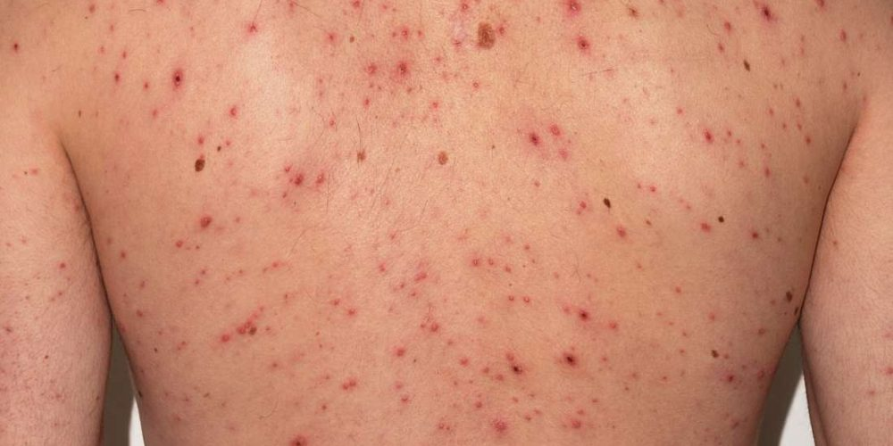 What to know about chickenpox in adults