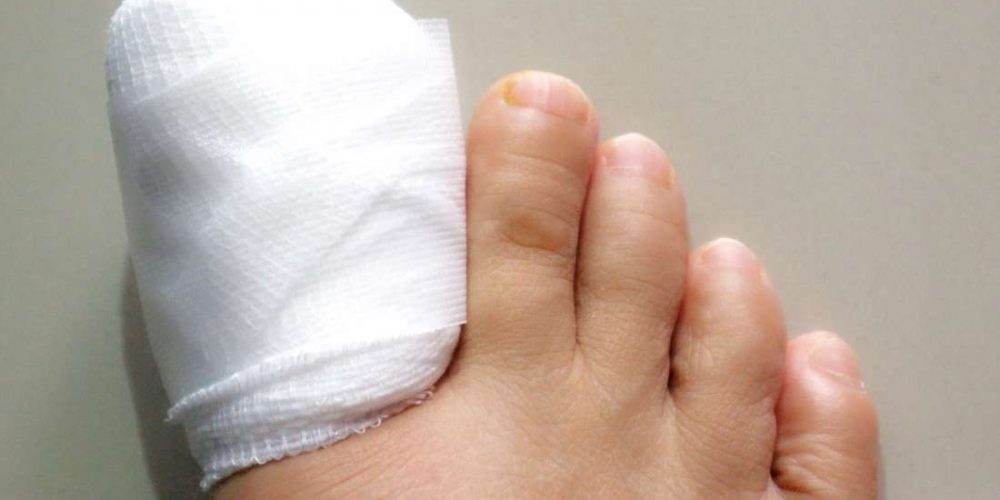 What to know about ingrown toenail surgery