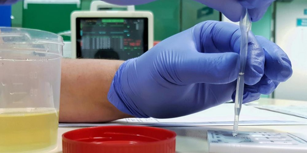 What to know about urine drug screening