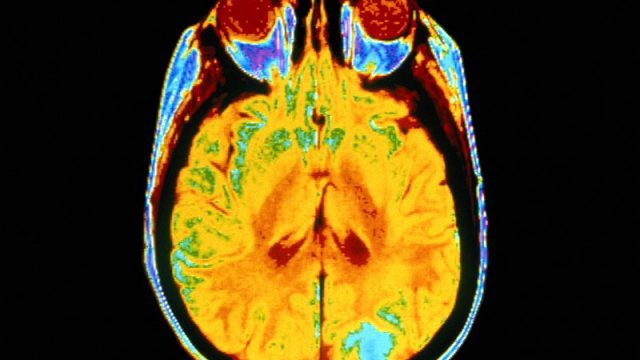Deep Brain 'Zap' Restores Vivid Memories to Alzheimer's Patients
