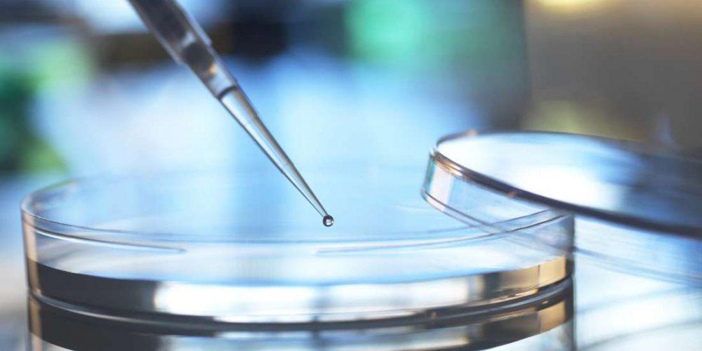 Stem cell therapy for rheumatoid arthritis