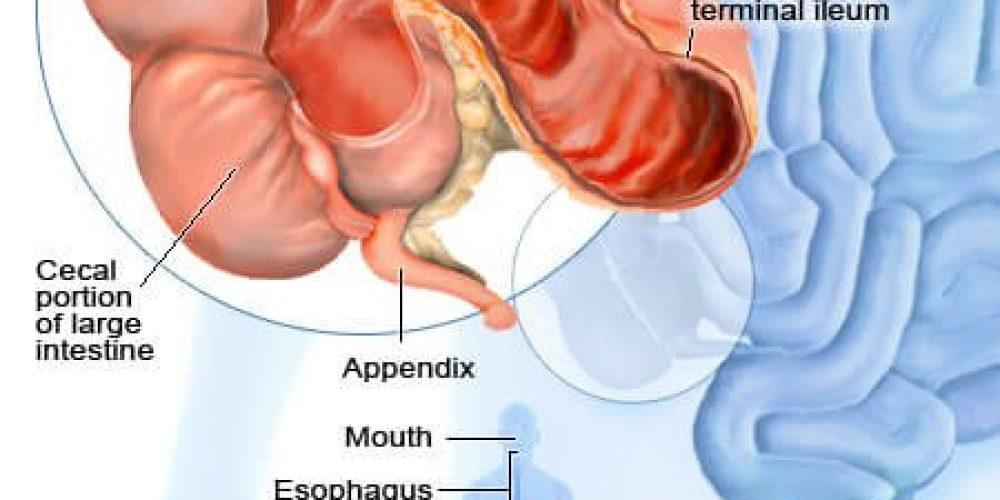 Crohn's Disease vs. Ulcerative Colitis (UC)