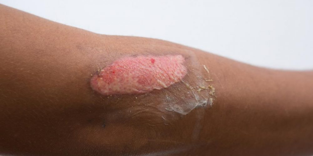 Second-degree burn: Everything you need to know